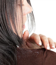 What Is The Difference Between Dandruff And Dry Scalp?